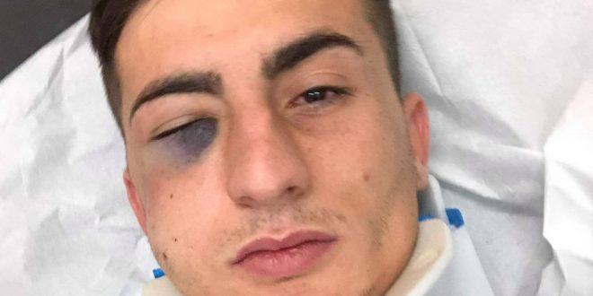 Diagnostic grav pentru Denis Brînzan după accidentarea de la Timişoara, trei fracturi la nivelul feţei